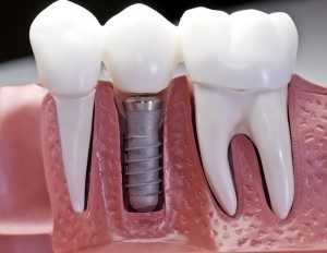 Čemu služe zubni implantati?