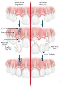 Kako to funkcioniše kod zubnih implantata?