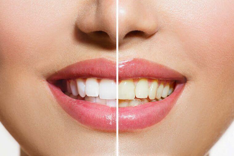 Skidanje kamenca sa zuba