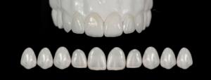 Zubne fasete ili viniri – sve što treba da znate