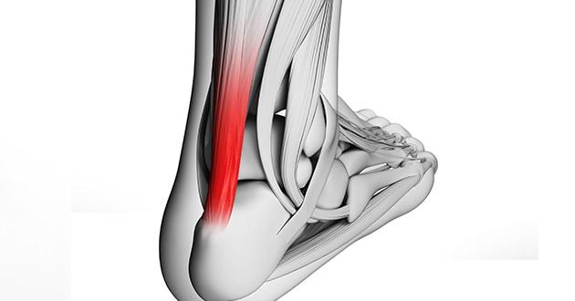 Fizikalna terapija kod povreda mišića