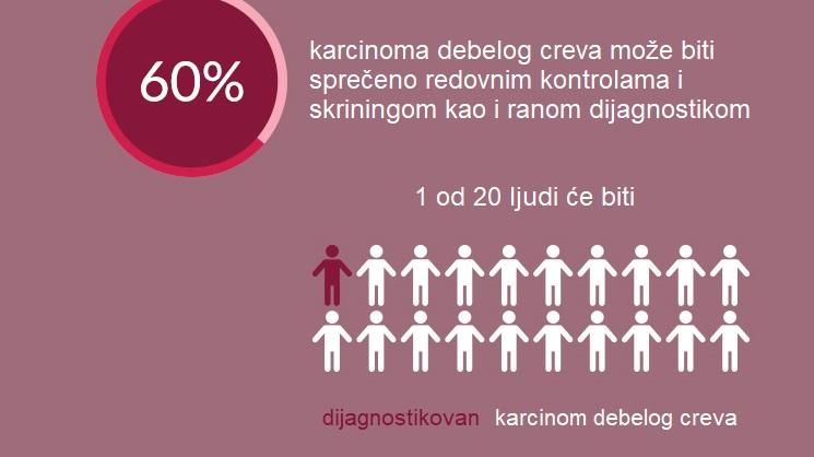 5 simptoma kancera debelog creva koje je lako uočiti