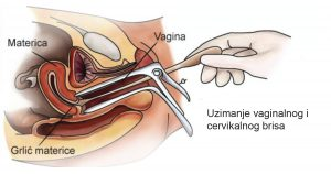 Priprema za Uzorokovanje genitalnih briseva