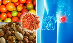 Најдоброто од природата за подобро функционирање на простатата