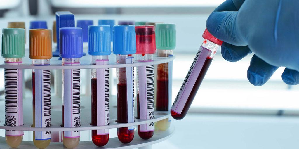 U duhu praznika – Popust za celu porodicu na laboratorijse analize