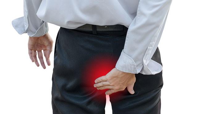 Hemoroidi – šuljevi – noduli haemorrhoidales