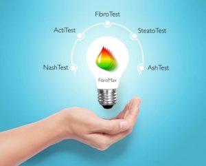 FibroTest i FibroMax Test