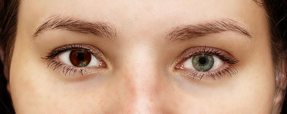 Heterohromija – različita boja očiju