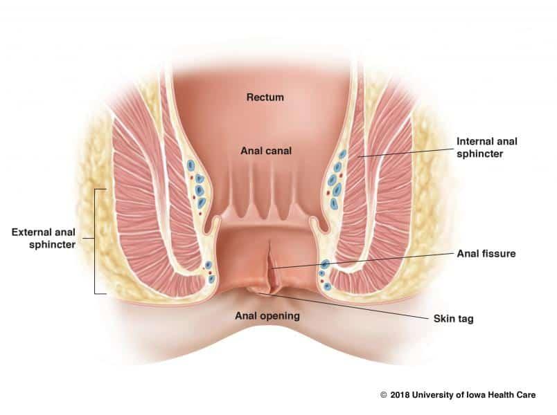 Analna fisura – uzroci, simptomi, lečenje