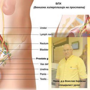 БПХ (Бенигна хиперплазија на простата)