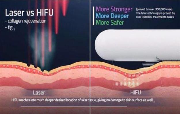 Fokusirani ultrazvučni talas visoke energije