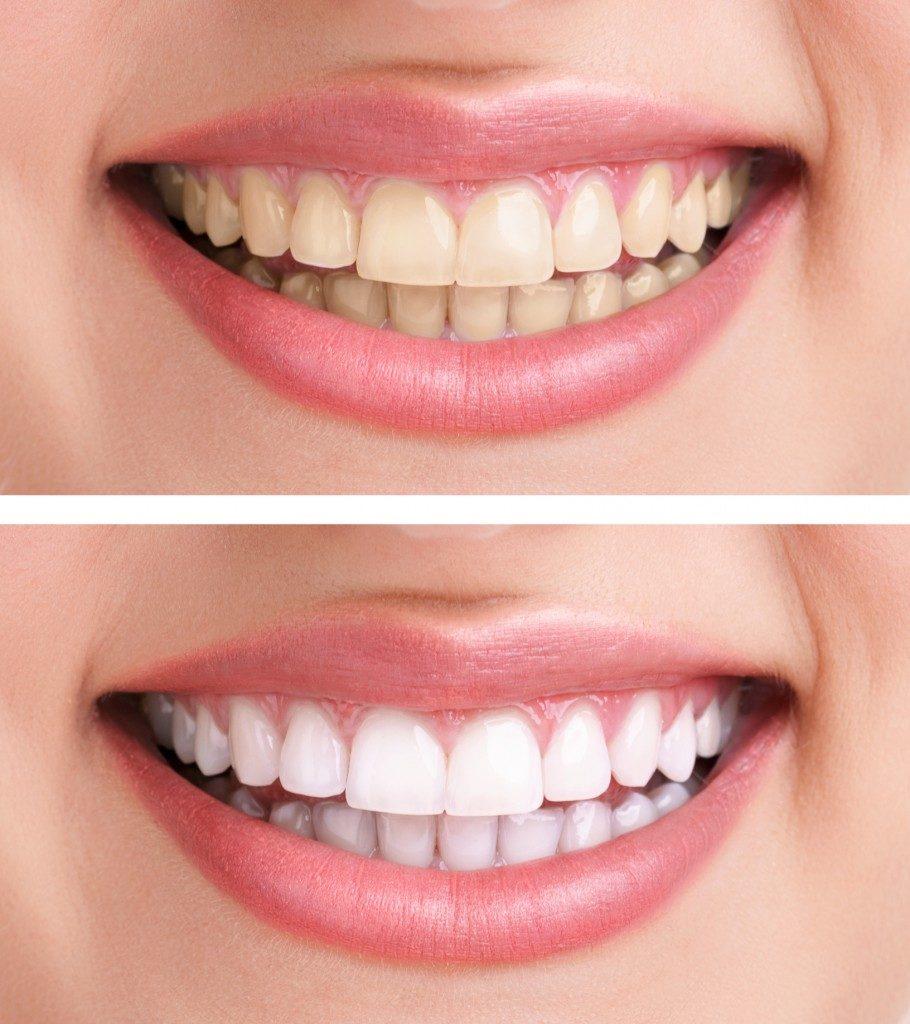 Izbjeljivanje zubi gelom