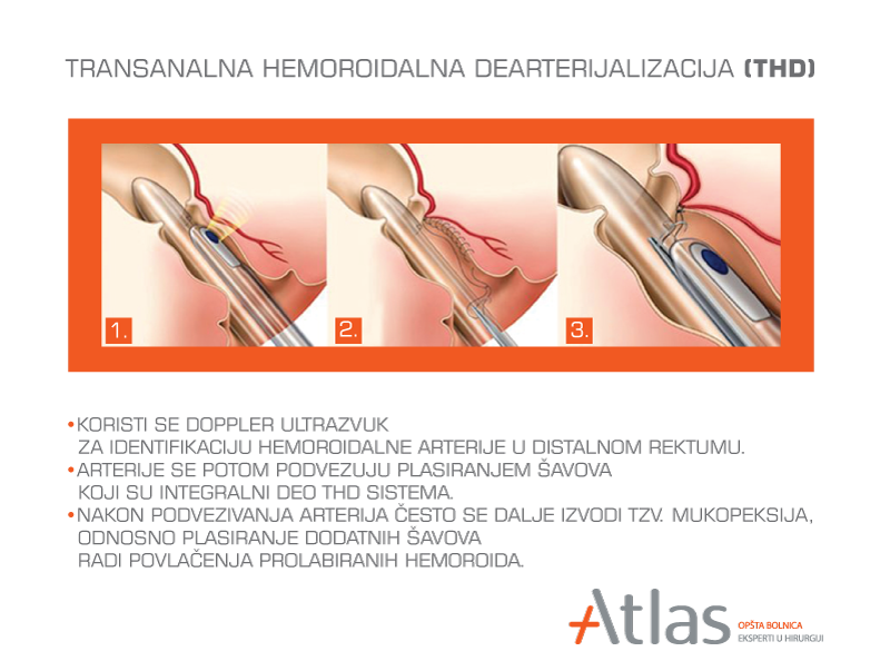 Operacija hemoroida THD metodom po ceni od 115.000 rsd