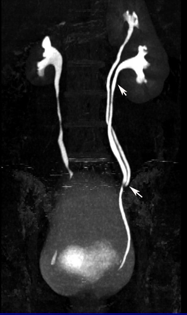 MR urografija