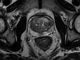 Multiparametrijski imidžing prostate primenom magnetne rezonance