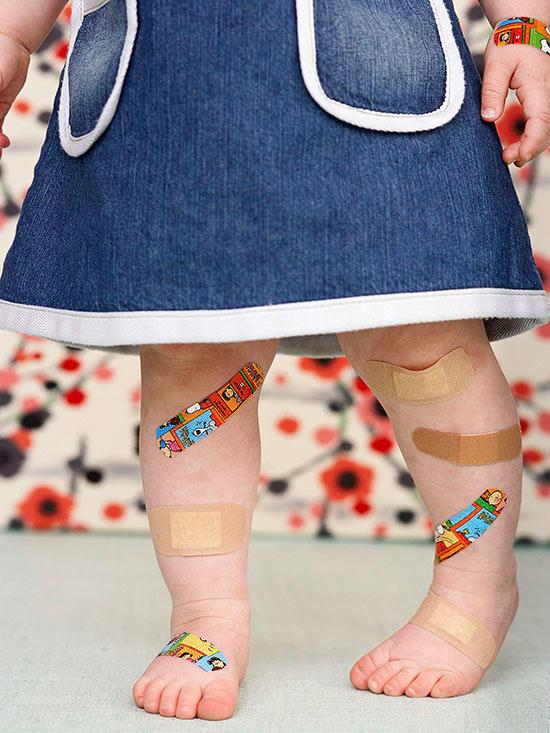 Odrana kolena - simbol detinjstva! :)