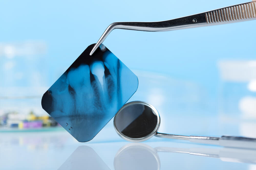 Snimanje zuba i digitalni ortopan -Kada i zašto su potrebni?