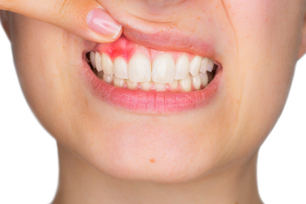Trudnički gingivitis – Održite zdravlje svojih zuba i tokom trudnoće